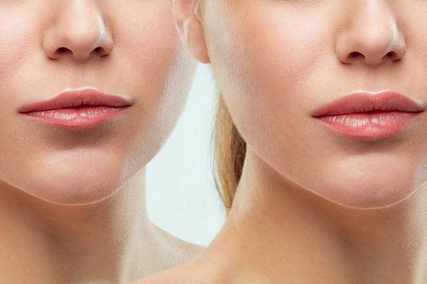 lip reshaping in Delhi